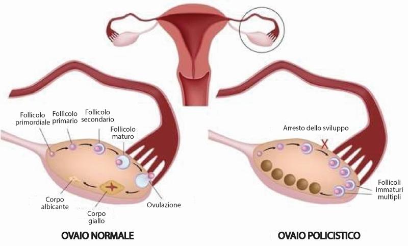 Nell'ovaio policistico i livelli di ormoni androgeni sono alterati